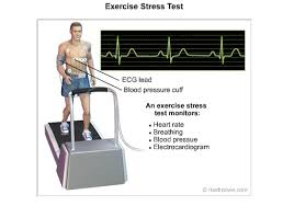 Exercise Stress Test Mets Chart Exercise Stress Test Cardiac Health