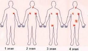 клиническая картина лимфомы