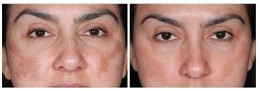 Dermaroller for Acne Scars, Wrinkles and Hyperpigmentation – Stripes &  Sights