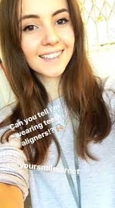 Aligners #Cost #Lottie #showing #Smith #unnoticeable Lottie Smith showing  off her unnoticeable aligners which cost her half of the usual selling  price. in 2020
