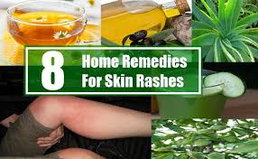 treatment of skin rashes and itching Archives - ITSDiscovery