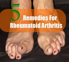home remedies for rheumatoid arthritis in fingers