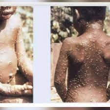 potential exposure to monkeypox