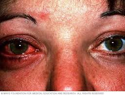 Pink eye (conjunctivitis) - Symptoms and causes - Mayo Clinic