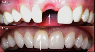 نتيجة بحث الصور عن زراعة الاسنان عدد