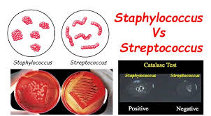 Streptococcus Identification Chart Differences Between Staphylococcus And Streptococcus