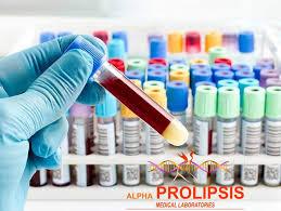 alpha prolipsis (@alphaprolipsis) | Twitter