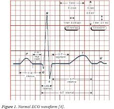 Ecg Signal Classification And Parameter Biomedical Research