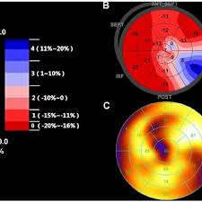 Color Gradation Of 2d Sti Target Chart And Target Chart Of