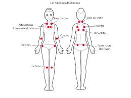 """Résultat de recherche d'images pour """"douleur fibromyalgie image"""""""