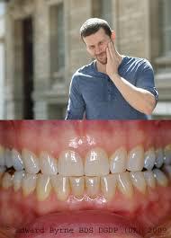 dental guard for teeth grinding