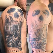 удаление тату лазером в москве лазерное удаление татуировок и