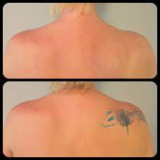 Come Coprire Un Tatuaggio Che Non Ti Piace Più