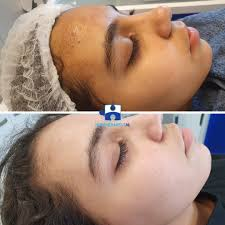 Acne treatment - Free consultation - Your skin, our care - Huidtherapeut NL