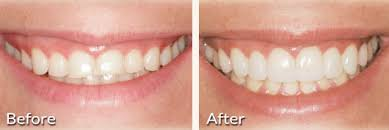 bulimic people teeth. Unique People WornDown Teeth And Bulimic People O
