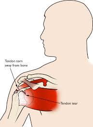 pain medicine for rotator cuff tear