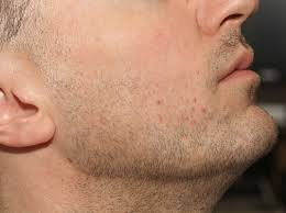 before chin hair removal for folliculitis