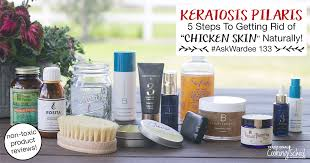 keratosis pilaris 5 steps to get rid