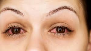 Is It Pink Eye or Allergies? - Health