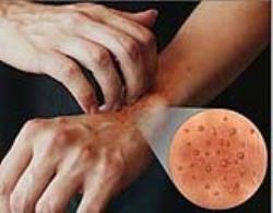 Skin Allergies - Anum Zara