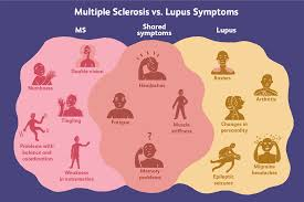 Differences Between Lupus And Ms