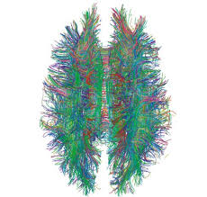 17 best images about the new science of the brain white matter connections in the human brain are imaged using