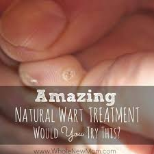 natural remes for warts an