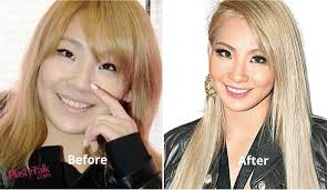 2ne1 cl plastic surgery