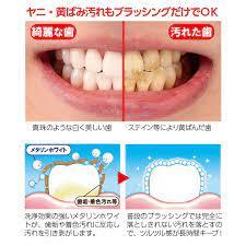 歯 の 黄ばみ 落とす