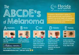 Mole Chart For Skin Cancer Mole Removal Fort Myers Fl Cape Coral Mole Removal