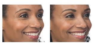 How Long Does Botox Last How Long Does Botox Last Santa Ana Botox Precision