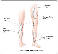 Leg Vein Chart Varicose Ulcer Diagram Catalogue Of Schemas