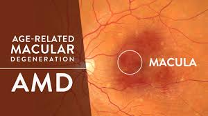 Age Related Macular Degeneration Eye Chart Macular Degeneration Overview