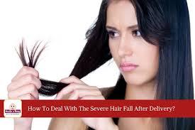 is postpartum hair loss normal plus 9