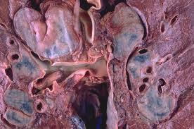 Αποτέλεσμα εικόνας για Lymphangioleiomyomatosis