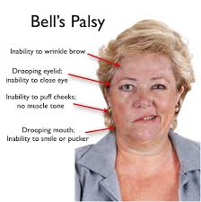 Image result for bell's palsy
