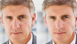Image result for prp facial before and after pictures
