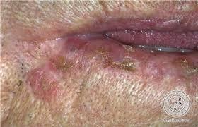 Viêm môi sừng hóa do ánh nắng, tổn thương có nguy cơ hóa ác cao.