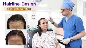 Hair Line Design Transplant Hairline Design In Hair Transplant