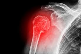 Shoulder dislocation surgery recovery time can range from 3–6 months with limited movement of the joint