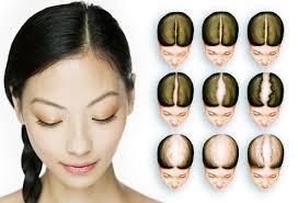 savin scale of female hair loss