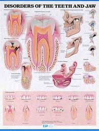 Jaw Chart Education Scientific Products Disorders Of The Teeth And Jaw