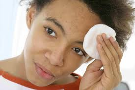 get rid of pimples for good by using a topical acne treatment