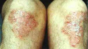 Psoriasis vs Eczema: What Is the Difference?