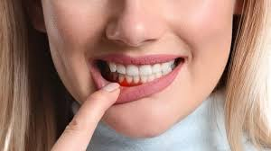 gum swelling treatment by home remes