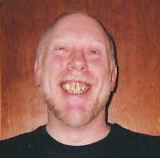 people with horse teeth. Exellent Horse Crooked Buck Discolored Pitted Ridged Snaggled  Whatever Adjectives  Connote Ugly And Dysfunctional You Could Put It In Front Of  Intended People With Horse Teeth