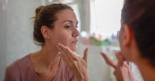 Depigmentation on the <b>Face</b>: Symptoms, Causes, and Treatments