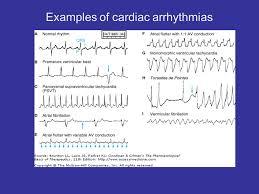 Drugs Used To Treat Cardiac Arrhythmias Ppt Video Online