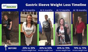 gastric sleeve weight loss chart and