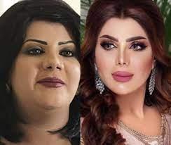 سنيوريتا عراقية - الفنانة إلهام فضالة قبل وبعد برأيكم هل...